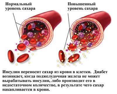skachat-knigu-lechenie-diabeta