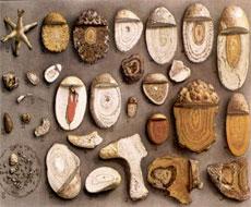 Мочекаменная болезнь — причины и симптомы камней в почках